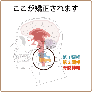 上部頚椎の矯正