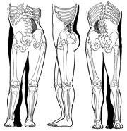 外反母趾と骨盤の歪み