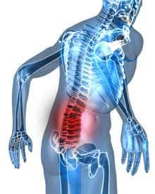 腰痛を修復する方法