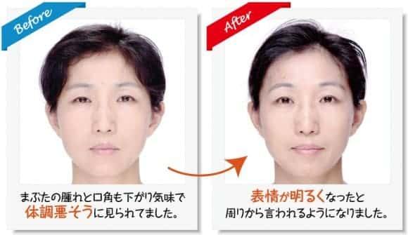 顔の歪み 左右 目の大きさ