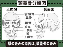 顔の歪みと頭蓋骨の分解図.png