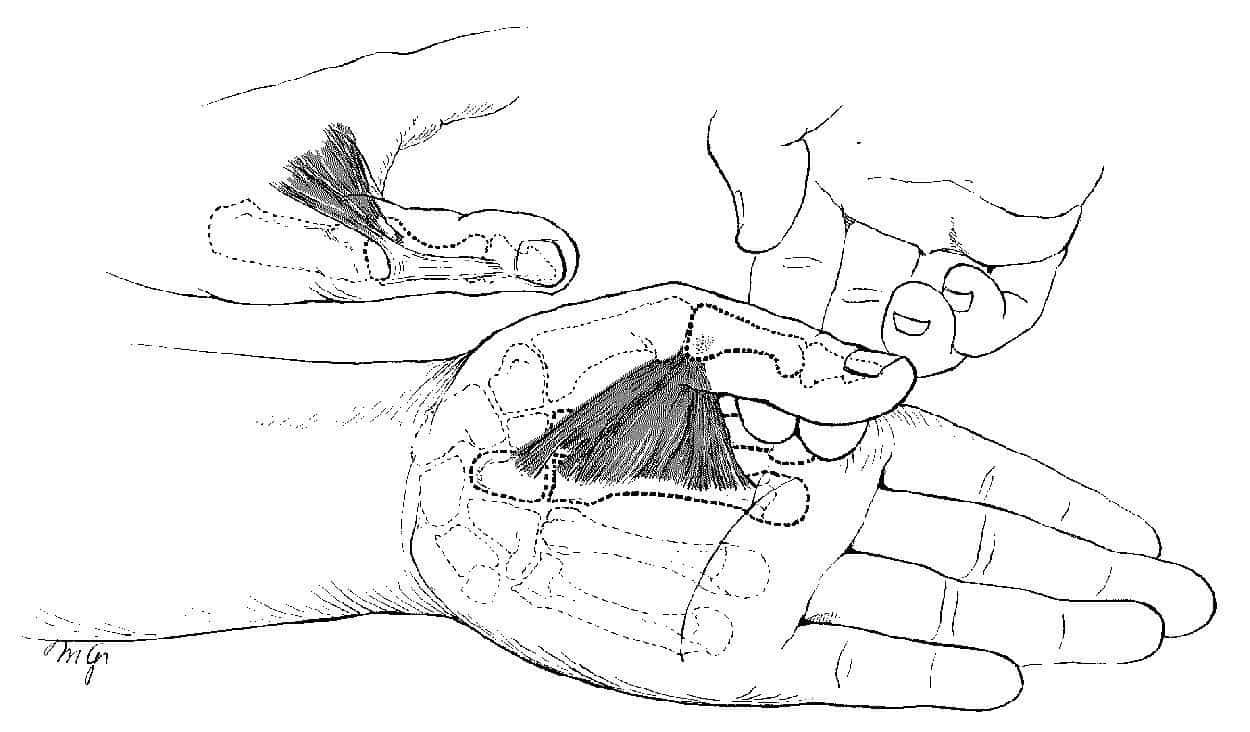 拇指の腱鞘炎