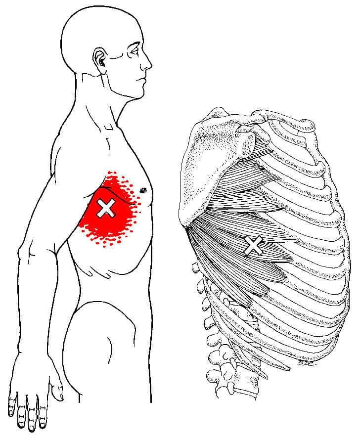 肋骨と胸の痛み